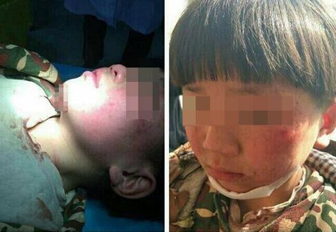 临沂8岁男孩被指长期遭养母虐待多处受伤 警方介入调查