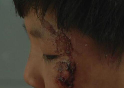 临沂8岁幼童遭虐待追踪:养母被拘留15天罚款1000元
