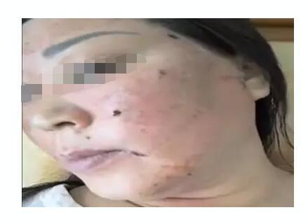 山东日照女子用斑美拉化妆品美容变毁容 重金打水漂