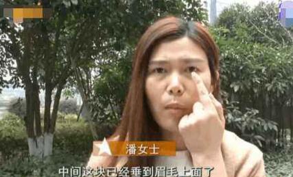 荒唐!因引力眼皮下垂 35岁女子18000元割双眼皮后悲剧了