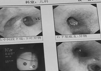 """半年不化奶茶珍珠 男童半年患上4次肺炎竟是肺里藏匿""""珍珠""""惹祸"""