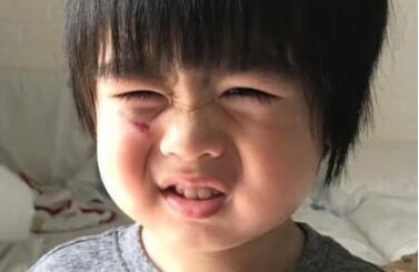 林志颖儿子跌伤脸 Kyson胖胖小...