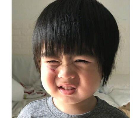 伤口泛红!林志颖儿子Kyson跌伤...