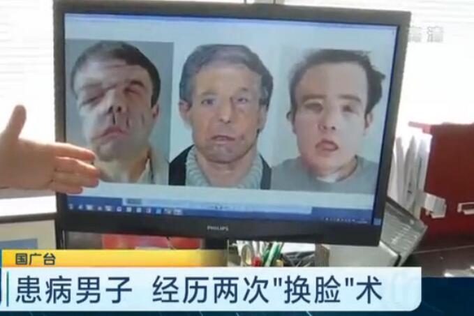 男子两次换脸手术 这台史无前例...