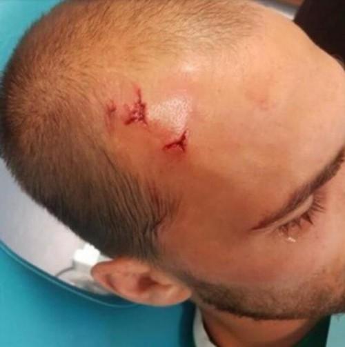 """头破血流!球迷暴打球员 葡萄牙体育发声明痛斥""""足球流氓"""""""