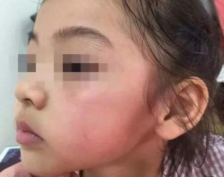 4岁女孩被掌掴最新进展:打人者已被行拘
