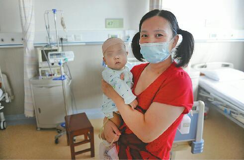 7个月大男婴患先天性胆道闭锁 42岁妈妈切肝救子