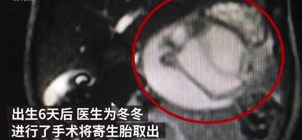 惊悚!男婴腹中藏寄生胎是怎么回事?终于真相了,原来是这样!