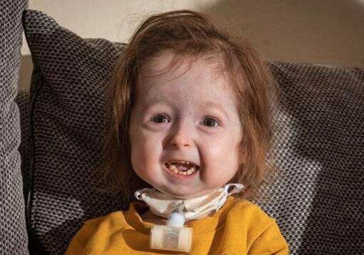 揪心!2岁女童面容衰老是怎么回事?终于真相了,原来是这样!