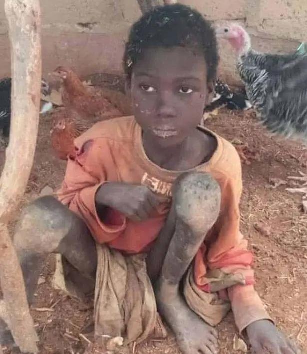尼日利亚男孩被拴羊圈2年吃饲料是怎