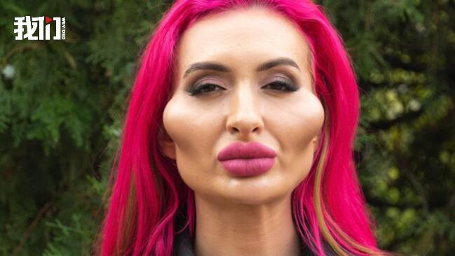 网红模特自称拥有世界最大脸颊 四年已花2000美元填充
